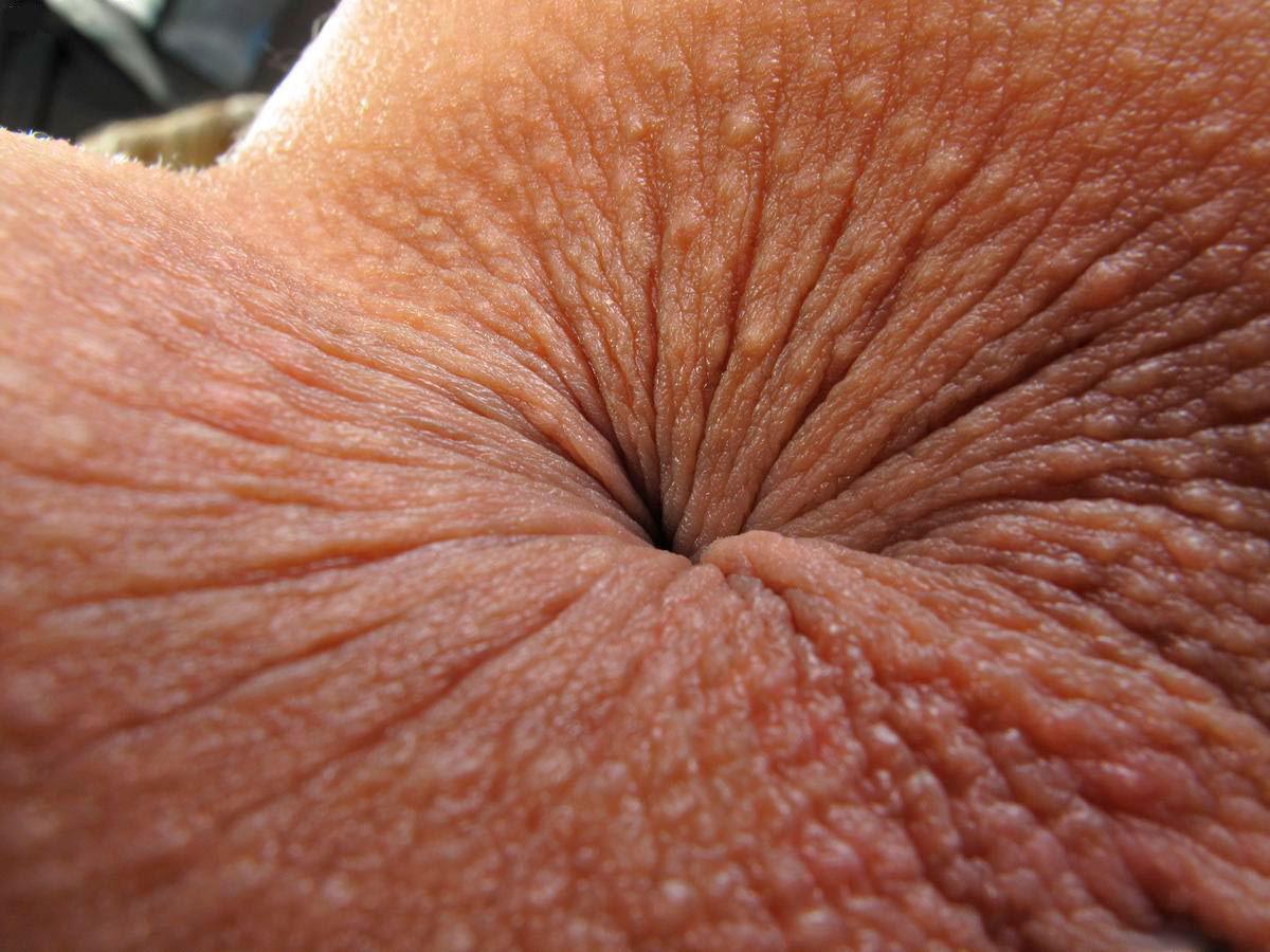 gay anal closeup